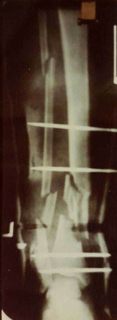 X-ray of broken bones helped by cannabis oil